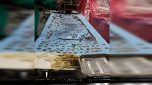 1.6kg ornament recovered from abdomen of a mentally imbalanced young woman at Birbhum